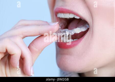 Eine zahnärztliche Zahnschiene bewachen für Zähne - Stockfoto