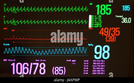Schwarzer Monitor mit ventrikulären Knoten reentrant Tachykardie /AVNRT (grüne Linien), arteriellen Blutdruck (rot) - Stockfoto