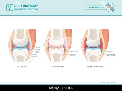 Gemeinsame Anatomie, Arthrose und rheumatoider Arthritis Infografik ...