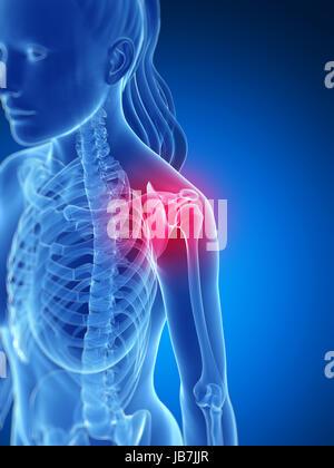 3D gerenderte Darstellung der schmerzhaften Schulter - Stockfoto