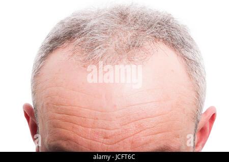 Vordere Haarausfall als männliche medizinisches Problem Konzept auf weißem Hintergrund - Stockfoto