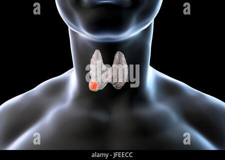 Thymusdrüse Tumor Symptome
