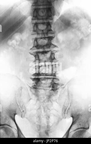 Anatomie der lumbosakralen Wirbelsäule Stockfoto, Bild: 7710283 - Alamy