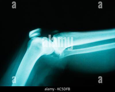 X-ray von menschlichen Arm mit gebrochenen Knochen mit rot markieren ...