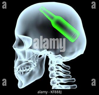 X-ray von einem Kopf mit Bier Flasche statt des Gehirns, 3 Abbildung d - Stockfoto