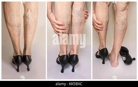 Schmerzhafte Krampfadern und Besenreiser auf weibliche Beine. Frau in Heels massieren müde Beine - Stockfoto