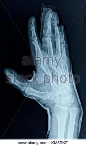 X-ray Image der auf der dritten metacarpal gebrochen Knochen in der ...