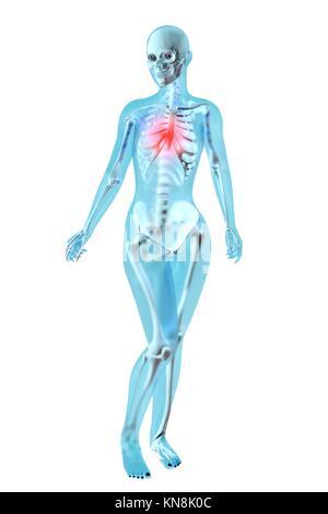 Schmerzen in der Brust oder das Herz. 3D-Bild dargestellt. Auf ...