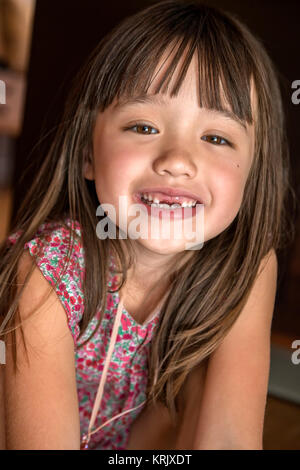 Fünf Jahre altes Mädchen fehlen ihr ihre zwei vorderen Zähne - Stockfoto