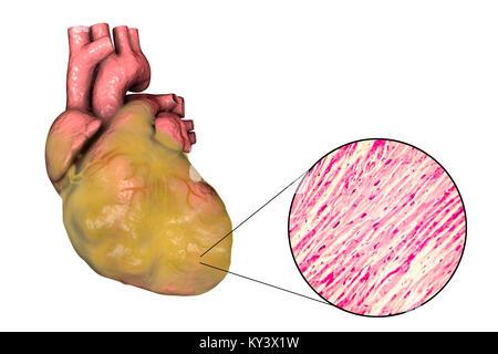 Abbildung: fetthaltige Herz mit linksventrikulärer Hypertrophie und ...