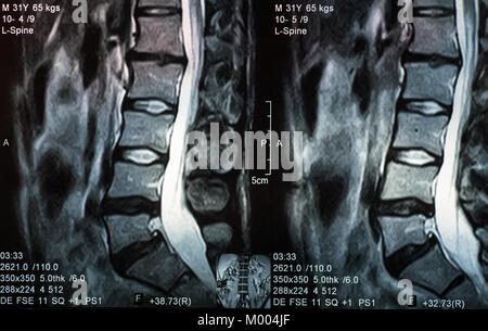Lumbale Bandscheibenvorfall L5-S1 mit Mikrodiskektomie Reparatur ...