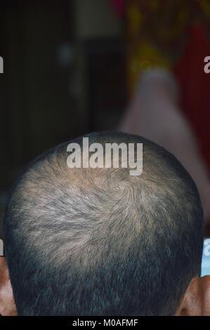 Glatze Haar auf dem Kopf - Stockfoto