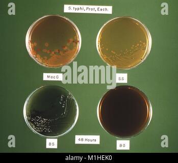Foto Von Vier Petrischalen Mit Der Gleichen Bakterien S Typhi E