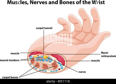 Das Diagramm zeigt die Nerven der menschlichen Hand. Aus Meyers ...