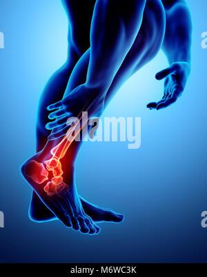 Sprunggelenk schmerzhaft - Skelett Röntgen, 3D Illustration medizinisches Konzept. - Stockfoto