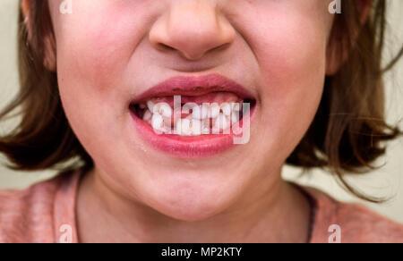 Portrait von Zahnlosen kind Mädchen fehlt Milch- und bleibenden Zähne. Nahaufnahme des junges Zicklein mit Zähnen Lücken und wachsenden bleibenden Zähne und gesundes Zahnfleisch p - Stockfoto