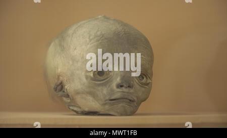 Anatomische erhaltene menschliche Präparate, die Hässlichkeit, die ...