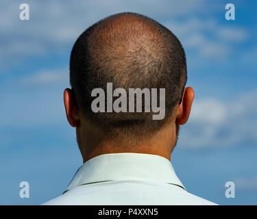 Rückseite des balding Mann. Alter 40 Jahre. - Stockfoto