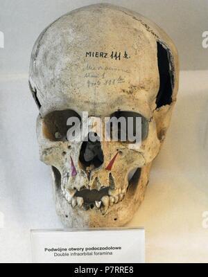 Zeigt die doppelte Infraorbital Foramen im Oberkiefer Knochen ...