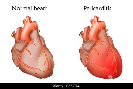 Perikarditis, Illustration. Vergleich zwischen einer normalen und einer mit Perikarditis, oder Entzündung der Herzbeutel. - Stockfoto