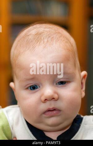 Vorderansicht eines Säuglings Junge mit Ptosis des linken Auges und eine mögliche Diagnose von Craniosynostosis. Er sieht müde aus. Sein Zustand behoben vor - Stockfoto