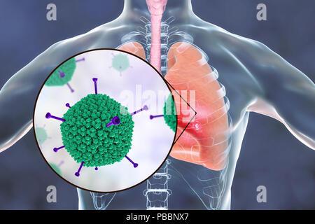 Adenoviren Anstecken der menschlichen Lunge, computer Abbildung. Adenoviren sind DNA-Viren, die am häufigsten der oberen Atemwege, Augen und Darm infizieren. Gelegentlich können Sie der unteren Atemwege Infektion (Pneumonie), insbesondere bei Kindern und immungeschwächten Patienten. - Stockfoto