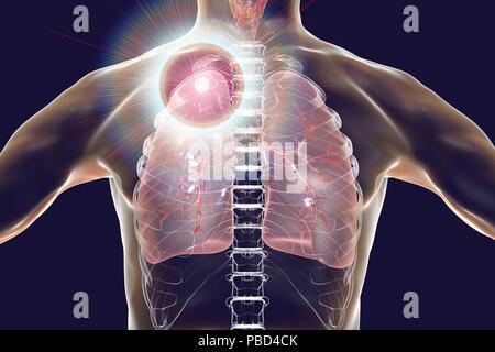 Sekundäre Tuberkuloseinfektion. Computer Abbildung kleine - große ...