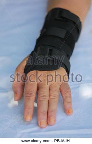 Gebrochene Knochen in der menschlichen Hand Abbildung Vektor ...