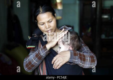 Mutter und ihre Jungen Leiden der Herzkrankheit. Kon Tum. Vietnam. | Verwendung weltweit - Stockfoto