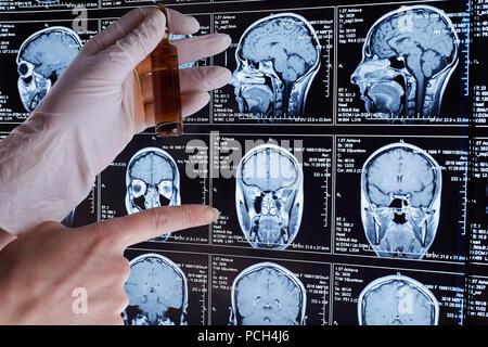 Mrt-Scan des Gehirns. MRI-Scan. - Stockfoto