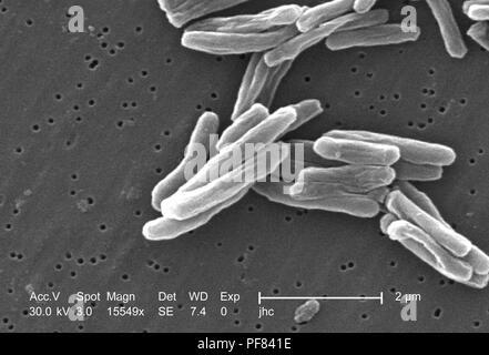 Ultrastrukturforschung Details von Gram-positiven Bakterien Mycobacterium Tuberkulose in der 15549 x offenbart vergrößerte Rasterelektronenmikroskopische (SEM) Bild, 2006. Mit freundlicher Seuchenkontrollzentren (CDC)/Ray Butler, MS, Janice Haney Carr. () - Stockfoto