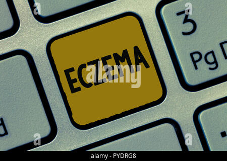 Text zeichen Ekzem zeigt. Konzeptionelle foto Hautzustand, der durch juckende und entzündeter Atopische Dermatitis gekennzeichnet. - Stockfoto