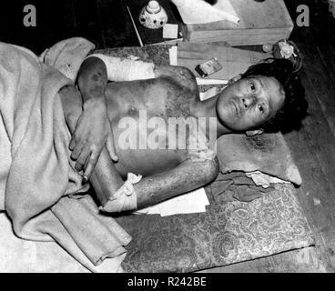 Zweiter Weltkrieg, Unfall nach der Explosion der Atombombe im August 1945 Hiroshima, Japan