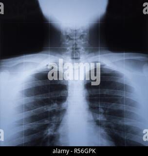 X-ray Bild des menschlichen Thorax - Stockfoto