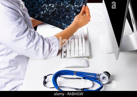 Arzt suchen Bei Computertomographie x-ray Image, das Arbeiten in der Medizin Arzt Tabelle mit Computer - Stockfoto
