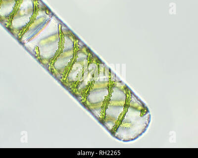Spirogyra sp. Algen unter mikroskopische Ansicht x 40 - chlorophyta