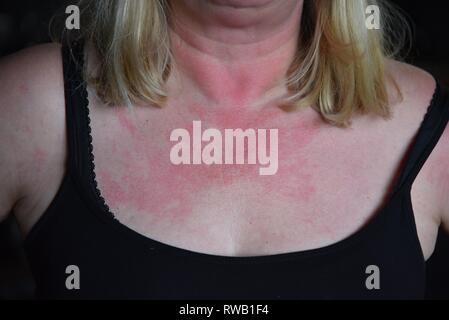 Allergie: die Brust eines nicht identifizierbaren Frau während einer allergischen Reaktion auf Antibiotika admininstered Bronchitis zu behandeln. - Stockfoto