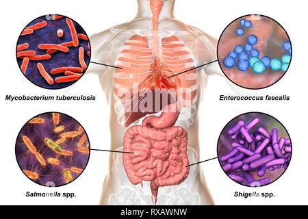Bakterien, die Infektionen beim Menschen verursachen, Abbildung - Stockfoto