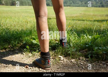 Frau mit schmerzhaften Krampfadern an den Beinen ruht auf einem Spaziergang durch die Natur. Varizen, Besenreiser Probleme und aktiven Lebensstil Prävention. - Stockfoto
