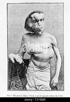 'The Elephant Man' Joseph Merrick - Stockfoto