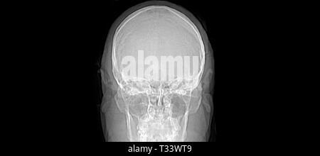 Die Magnetresonanztomographie (MRT) Kopf Gehirn menschlichen sagittalen/CT-Scan - Stockfoto
