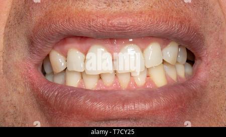 vergammelte zähne