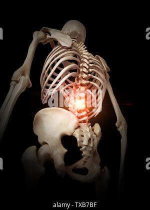 3D-gerenderte Medizinisch genaue Abbildung: eine schmerzhafte Wirbelsäule - Stockfoto