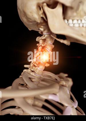 3D-gerenderte Medizinisch genaue Abbildung eines schmerzhaften Hals - Stockfoto