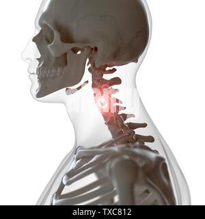3D-gerenderte Medizinisch genaue Abbildung eines schmerzhaften Halswirbelsäule - Stockfoto