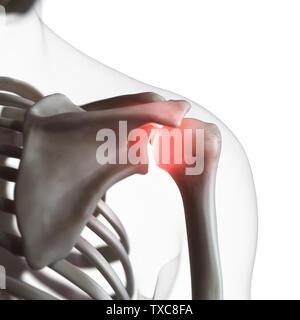 3D-gerenderte Medizinisch genaue Abbildung: eine schmerzhafte Schultergelenk - Stockfoto