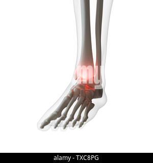 3D-gerenderte Medizinisch genaue Abbildung eines schmerzhaften Knöchel - Stockfoto
