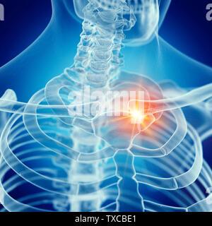 3D-gerenderte Medizinisch genaue Abbildung eines schmerzhaften Schlüsselbein - Stockfoto