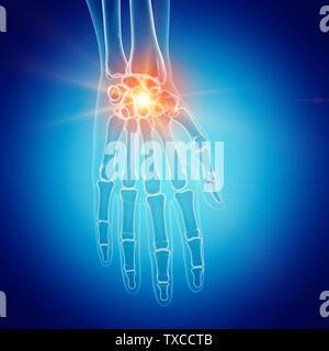 3D-gerenderte Medizinisch genaue Abbildung: eine schmerzhafte Handgelenk - Stockfoto