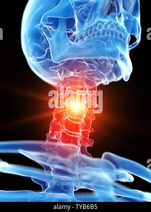 3D-gerenderte medizinisch genauen Abbildung des zervikalen Hals, Schmerzen - Stockfoto